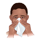 Nasal Pump Sprays
